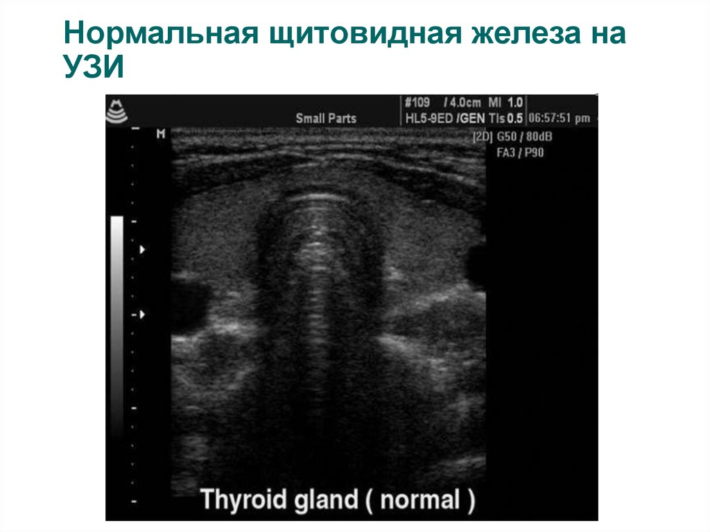 Нормальная щитовидная железа на УЗИ