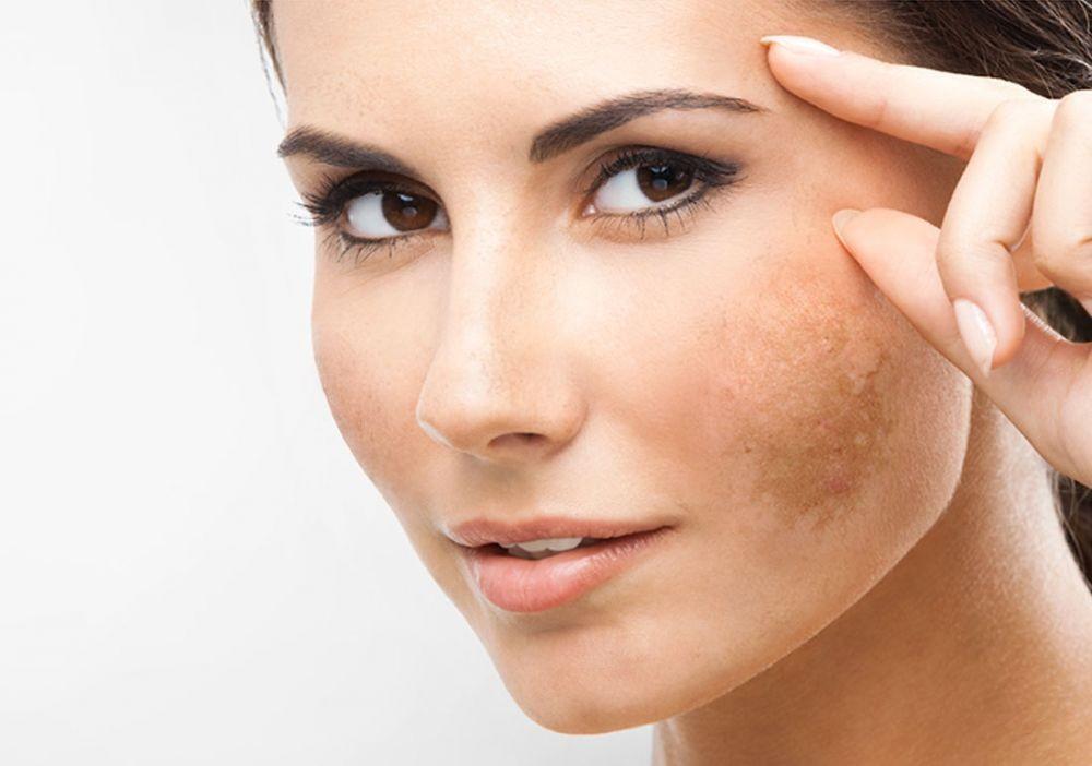Показаниями к процедуре является пигментация кожи
