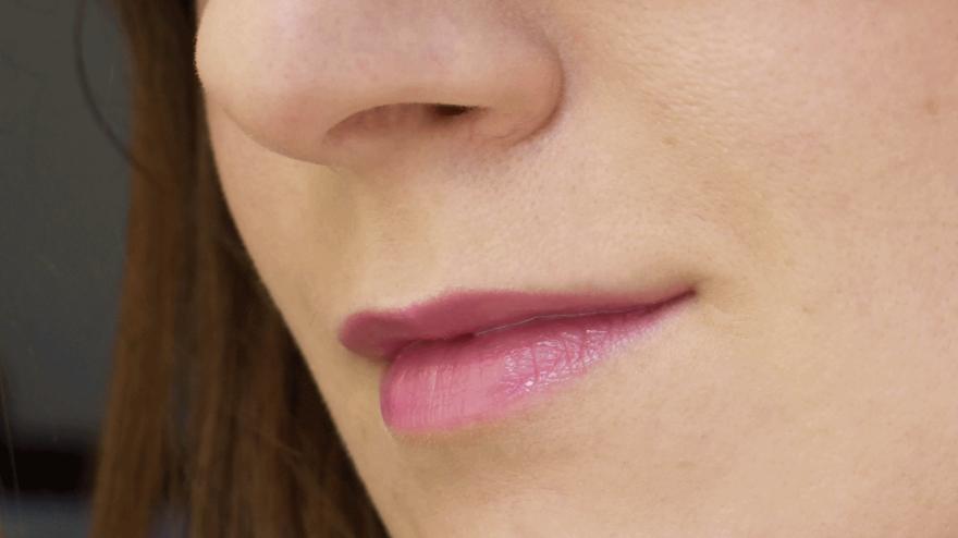 Тонкие губы являются показанием для коррекции