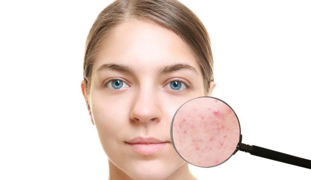 Чистка показана при высыпаниях на коже