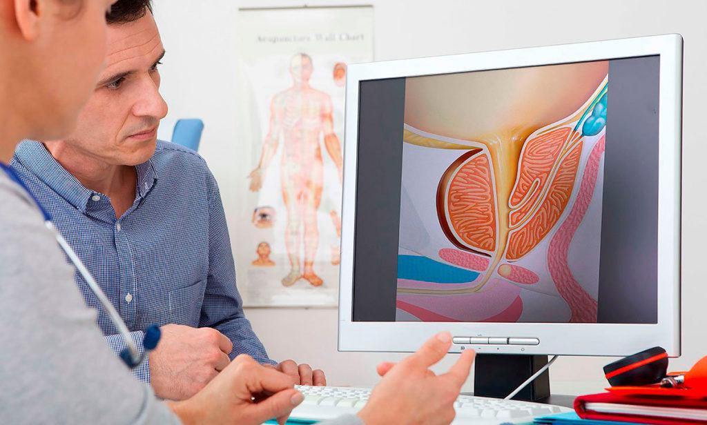 По результатам диагностики уролог подберет оптимальную терапию