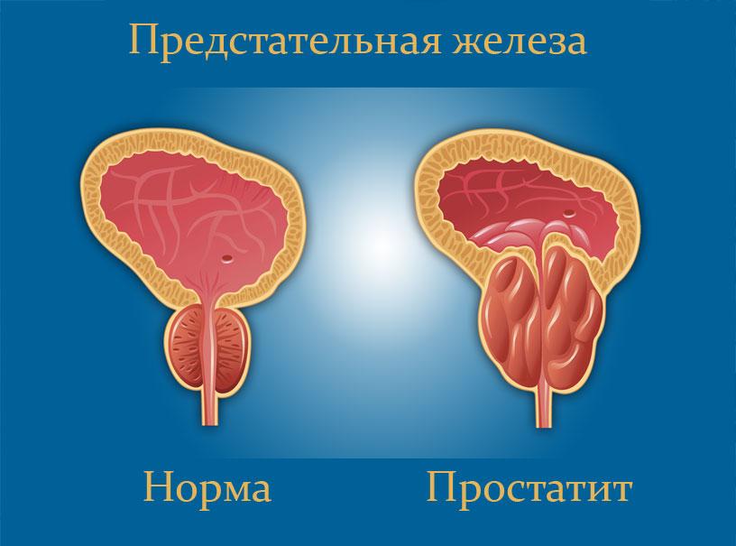 Воспаленная предстательная железа отекает и оказывает давление на мочеиспускательный канал