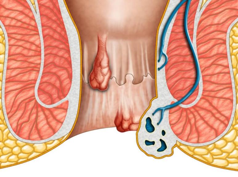 Геморрой может быть наружный и внутренний