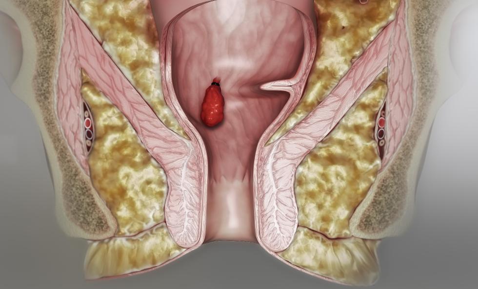 Для удаления внутренних узлов применяются хирургические методы