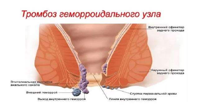 тромбоз геморроидального узла