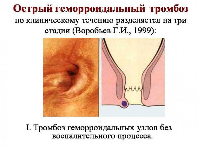тромбоз геморроидального узла лечение