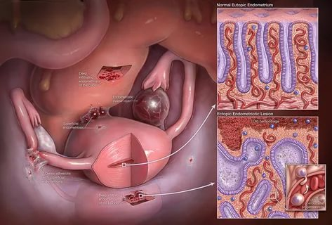 Локализация эндометриоза