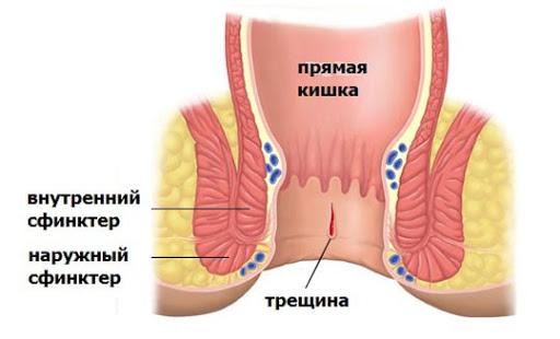 Виды анальной трещины